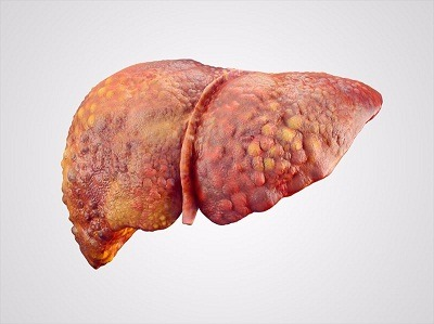 Liver Cirrhosis Treatment in Medical Astrology
