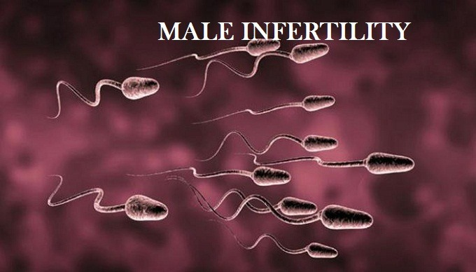 Male infertility cause