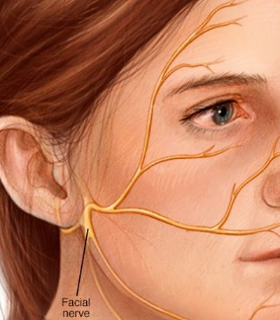 Medical Astrology Treatment of Bell's Palsy