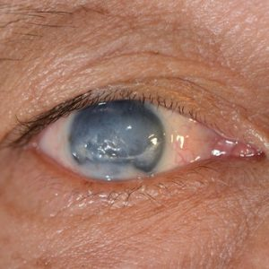 Medical Astrology Treatment of Glaucoma