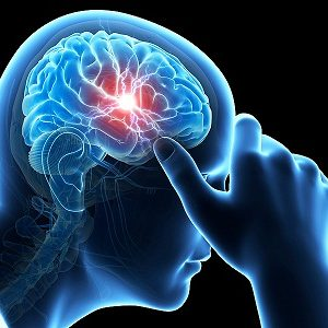 Migraine Treatment in Medical Astrology