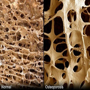 Osteoporosis Treatment In Ayurveda