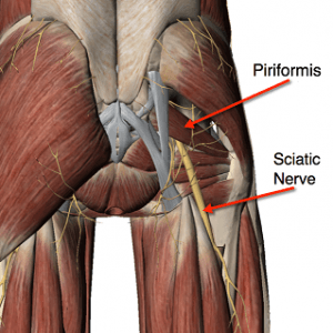 Sciatica Treatment In Medical Astrology