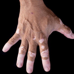 Skin Disease Treatment In Medical Astrology