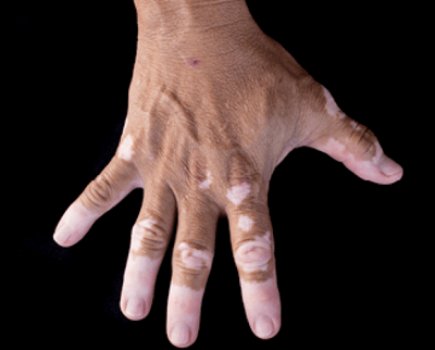 Skin Disease Treatment In Medical Astrology