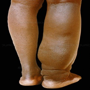 Elephantiasis Treatment in Medical Astrology