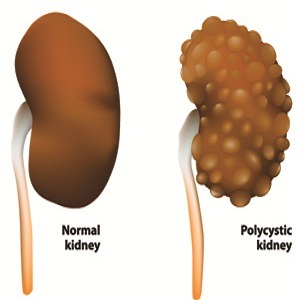 Polycyctic Kidney Disease Treatment In Medical Astrology
